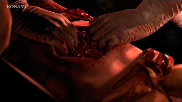 MGSV-E3-Trailer-Stomach-Surgery