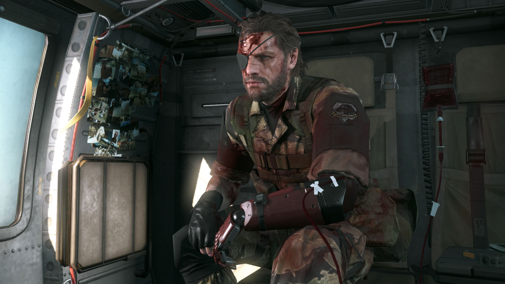 Metal-Gear-Solid-V-The-Phantom-Pain-E3-2015-Screen-Big-Boss-Chopper-Blood-Transfusion